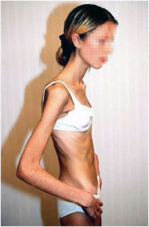 anorexia (1)